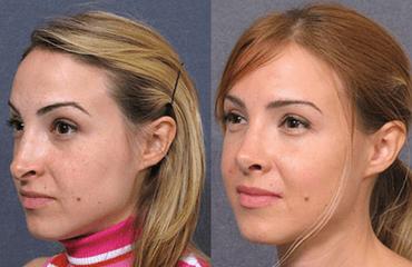 Facial Central Feature