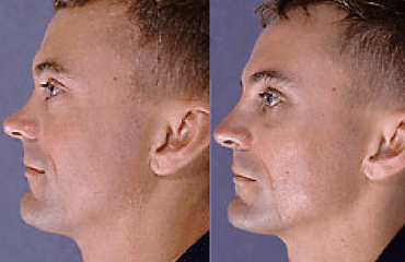 Corrective Rhinoplasty Surgery