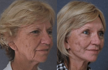 Facelifting Preserving Facial Expression