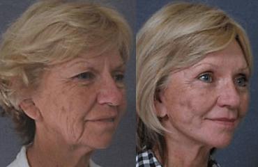 Facelifting Preserving Facial Expression