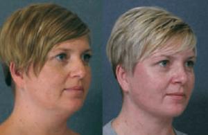 neck-lipsuction-rhinoplasty