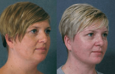 Nose Surgery & Neck Liposuction Combined