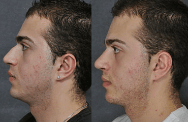 Male Rhinoplasty – Male Nose Surgery