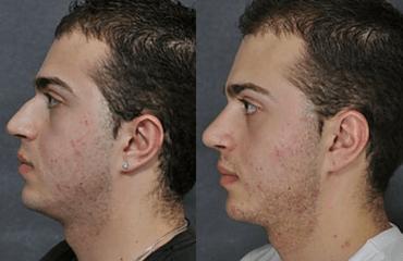 Male Rhinoplasty - Male Nose Surgery