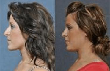Nose Surgery & Computer Imaging