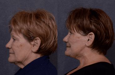 Facelifts on the Rise as Baby Boomers Fight Back