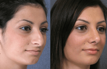 How can you decide if nose surgery is right for you?