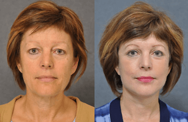 Facelifts with a Natural Look