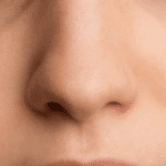 Reasons to Consider Having Rhinoplasty