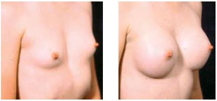 BEFORE and AFTER breast augmentation by Dr Hodgkinson to correct chest wall deformity