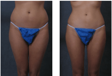 weight loss cosmetic surgery