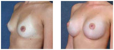 BEFORE and AFTER breast augmentation by Dr Hodgkinson