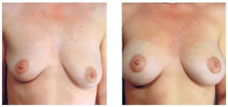 BEFORE and AFTER breast augmentation by Dr Hodgkinson to correct droop