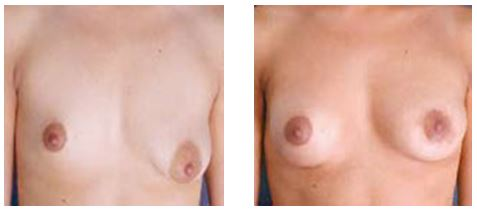 BEFORE and AFTER breast augmentation by Dr Hodgkinson to correct asymmetry