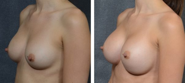 Anaplastic Large Cell Lymphoma (ALCL) Associated with Textured Breast Implants