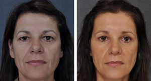 Before and after 2 months bilateral upper lid blepharoplasty and browlift