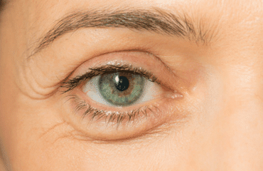 Eye Area Rejuvenation