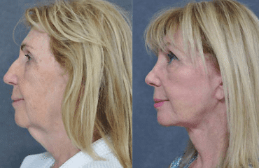 Facelifting – Keeping It Real