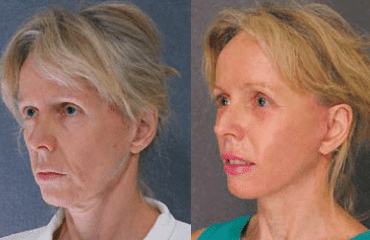 Face lifting just the facts