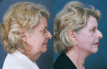 Correcting Double Chins