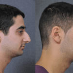 Keeping It Real: Natural Looking Facelift Results for Men