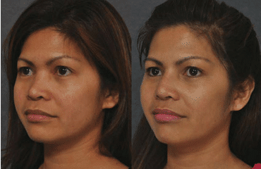 Innovations in Rhinoplasty