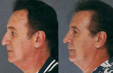 Case Studies in Rhinoplasty