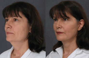 Natural-Looking Facelift Results Using the Fogli Lift