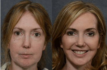 Is It Time for Facelift Surgery?