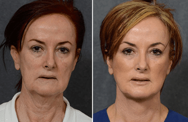 The best age to get a facelift?