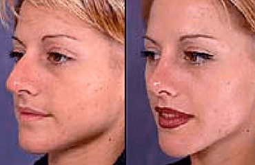 Rhinoplasty - Building Up The Nose