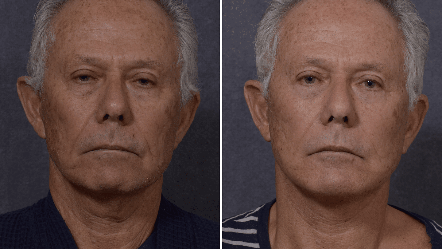 Before and after facelift, lower blepharoplasty and a chin implant