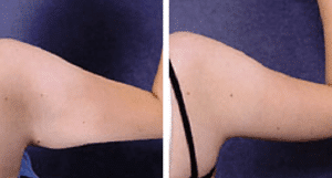 arm-reduction-surgery