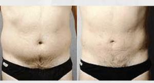 liposuction-liposculpture