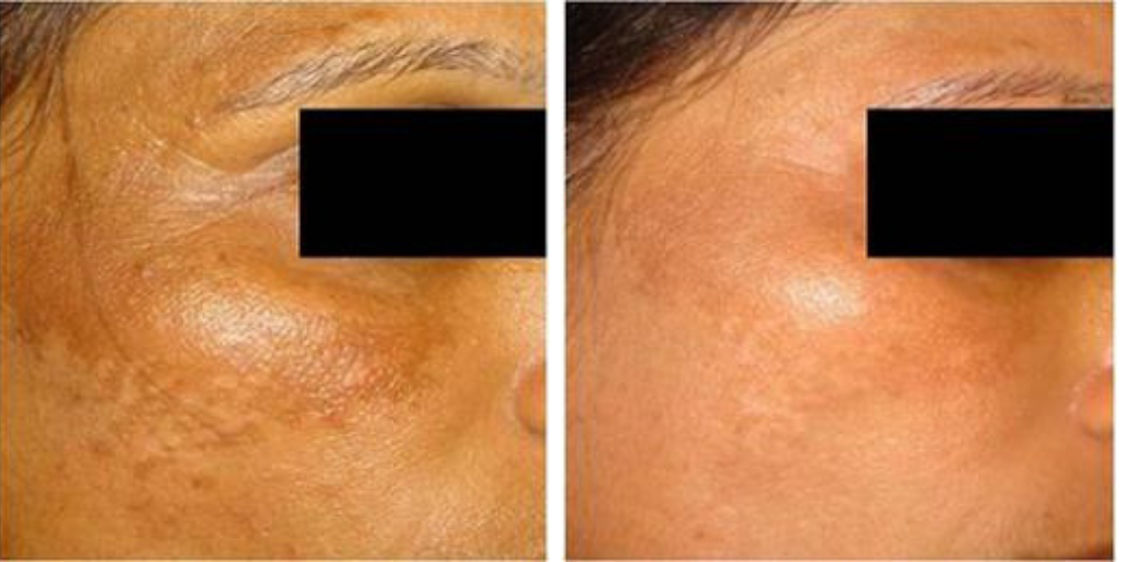Infini Skin Tightening: Acne Scar Removal Treatment in Sydney