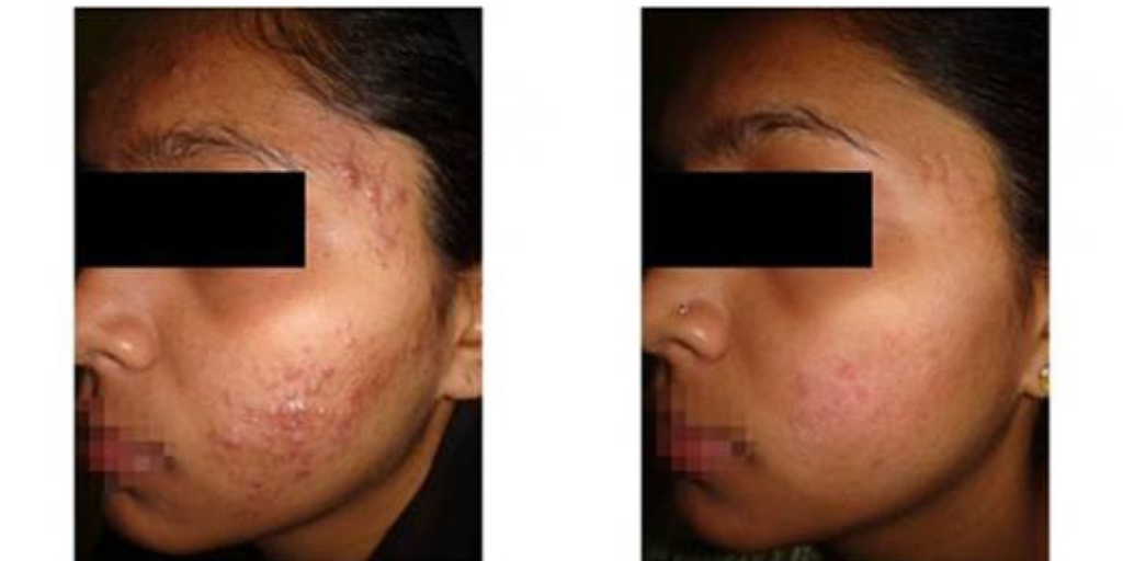 Infini Skin Tightening: Acne Scar Removal Treatment in Sydney