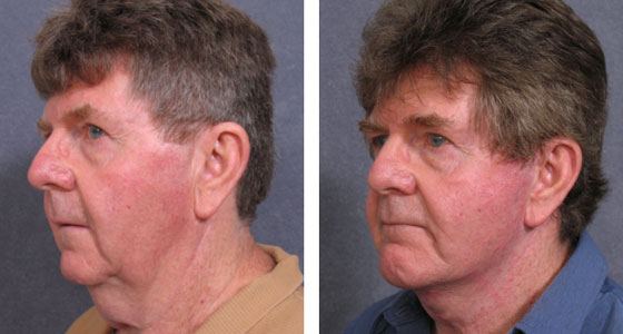 MT-preop-facelift-and-chin-implant-12.02