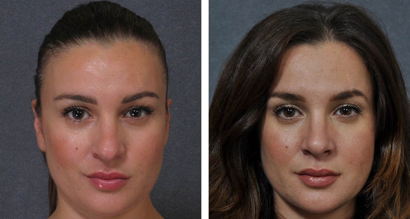 Rhinoplasty surgery nose job in sydney dr hodgkinson before and after rhinoplasty solutioingenieria Images