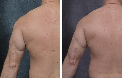 CUSTOM BODY IMPLANT SURGERY