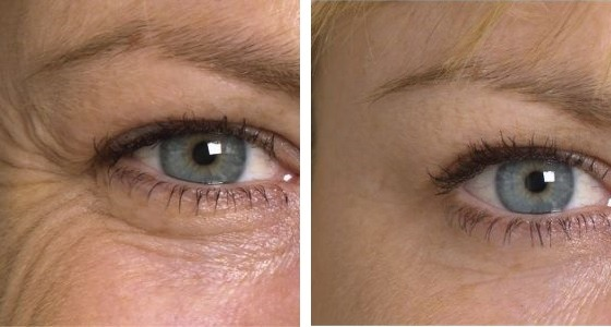 Before after anti wrinkle injections