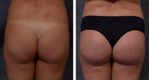 b&a before and after buttock implants