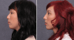 Before and after rhinoplasty with bone grafting on a Eurasian patient