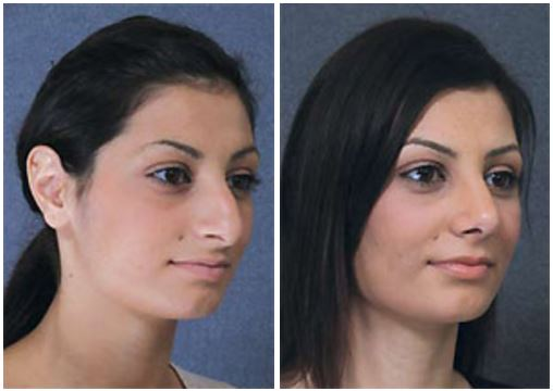 Before and after closed rhinoplasty by Dr Hodgkinson to enhance facial features while reducing tip and hump