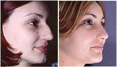 Before and after rhinoplasty by Dr Hodgkinson with a focus on maintaining strong masculine features