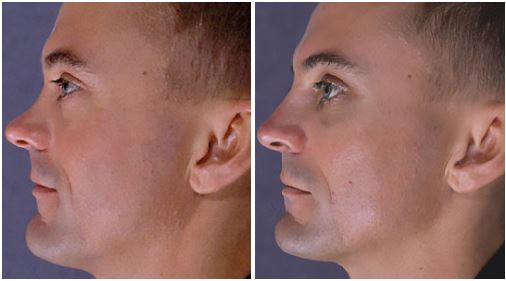 Before and after secondary rhinoplasty by Dr Hodgkinson to correct over-resection of the dorsum with bone graft and tip surgery