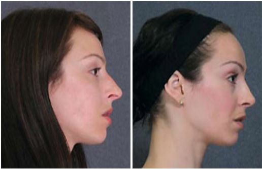 Before and after rhinoplasty by Dr Hodgkinson to enhance profile