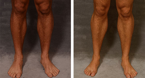 Calf implant Before After