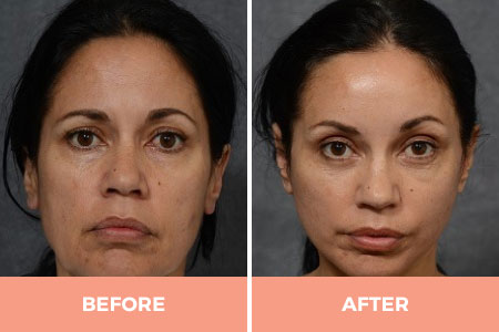 Before and after a brow lift procedure