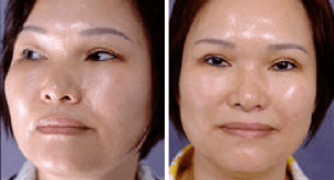 Blepharoplasty-asian