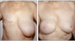 TRAM flap reconstruction, right breast and left breast reduction, 4 months post breast reconstruction
